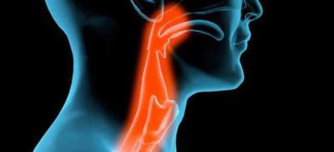 Что такое невроз глотки