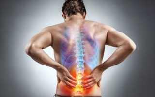 Чем снять боль в спине
