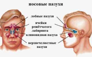 Киста в левой пазухе носа