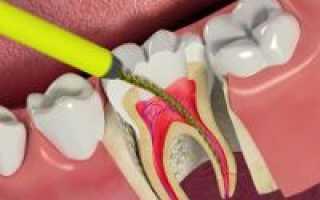 Почему болит зуб с удалённым нервом