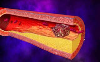 Как проверить сосуды на наличие тромбов